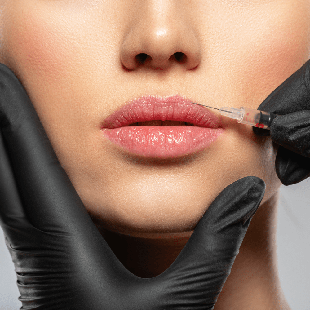 Home Lip Filler