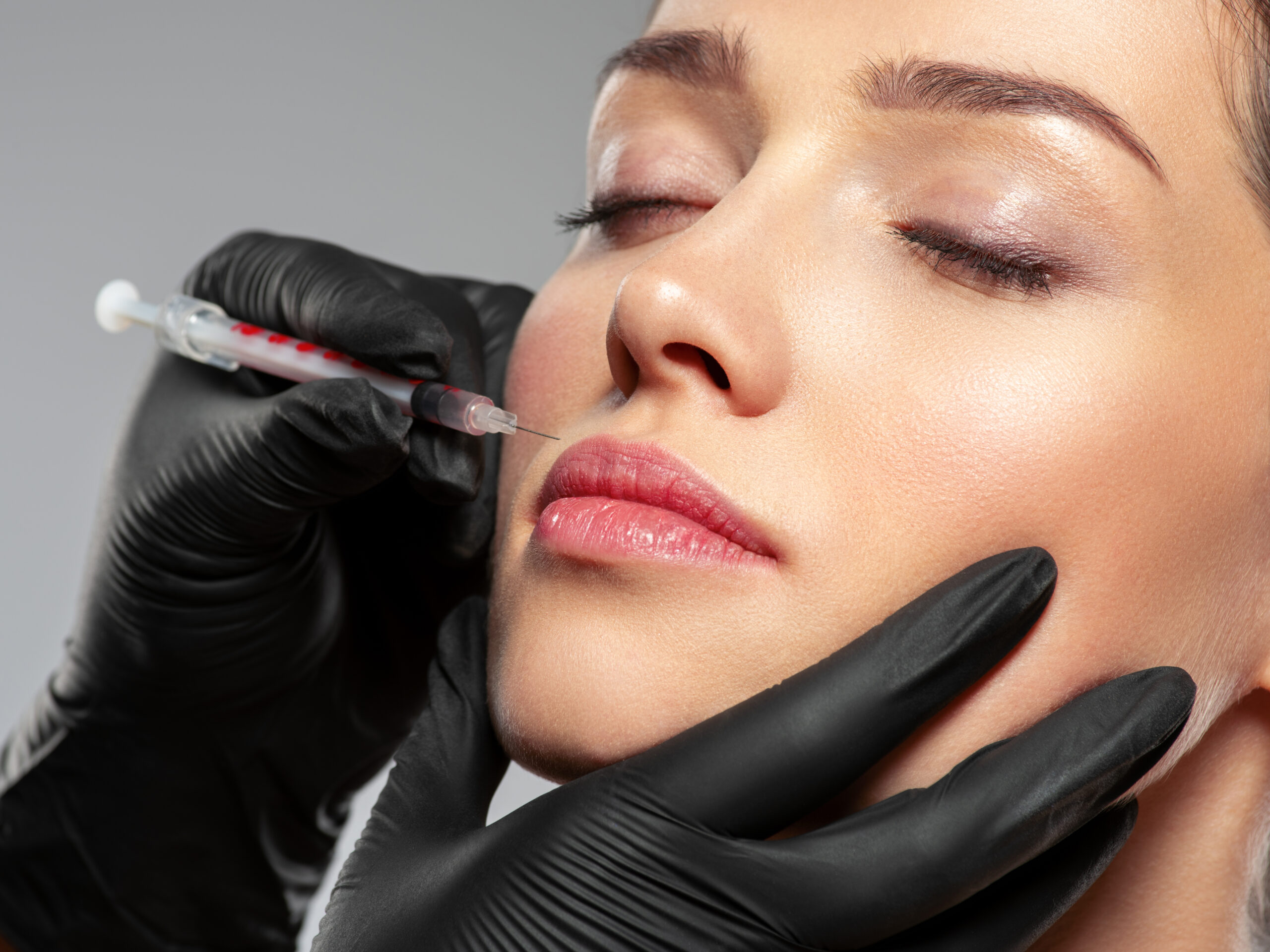 Dermal Fillers Rochester, Michigan - GLO Aesthetics